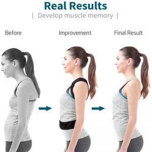 Geradehalter Haltungskorrektur Haltungstrainer gegen Schulterschmerzen